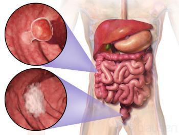 Виды колоректального рака