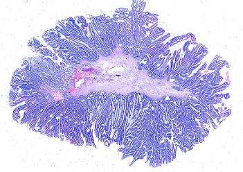 Разновидности колоректального рака