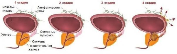 Treatment of prostate enlarged prostate cancer