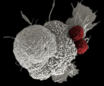 иммунотерапия рака простаты