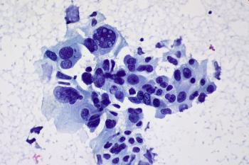 новое в лечении рака